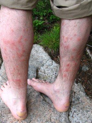 Piqures de moustiques